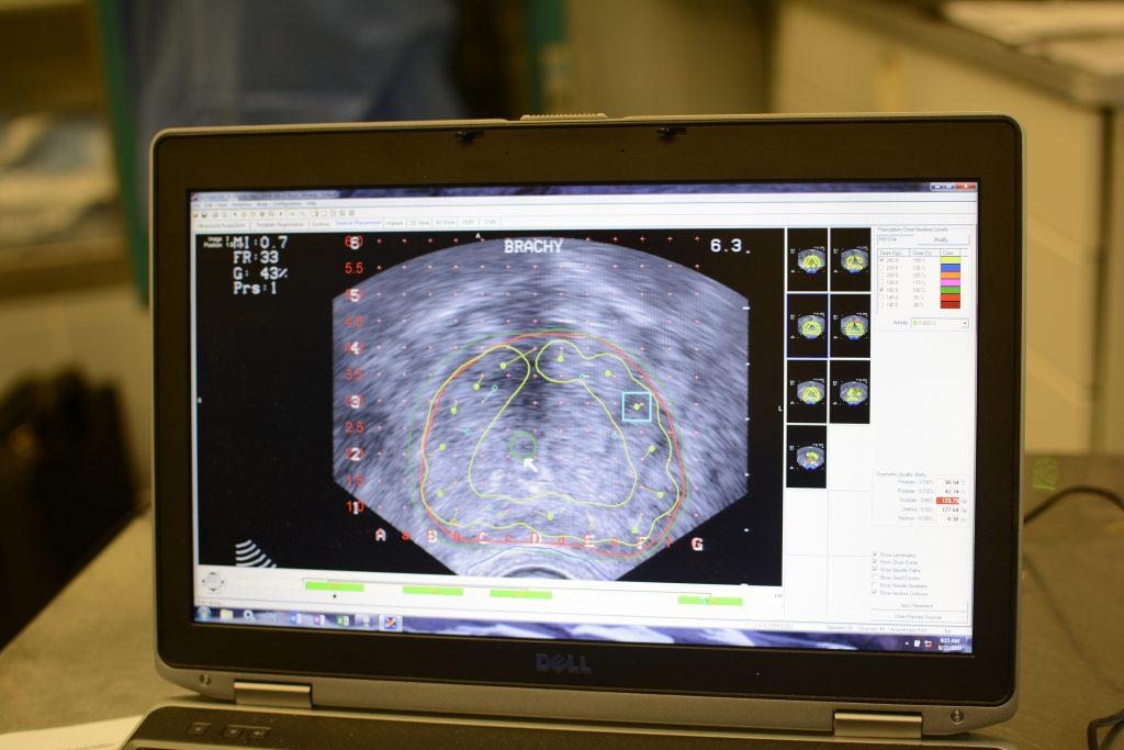 Real time Strahlenplanung in der Prostata bei Brachytherapie